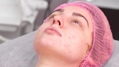 HORMONAL ACNE: TRADITIONAL TREATMENTS AND NATURAL REMEDIES